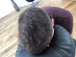 Nach der Haarpigmentierung