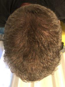 2 Tage nach der Haarpigmentierung