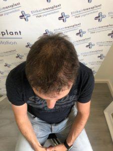 Haarpigmentierung: 2. Behandlung