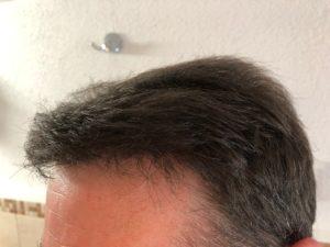 Haarpigmentierung Elithairtransplant