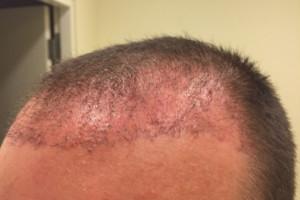 3 Wochen nach der Haartransplantation