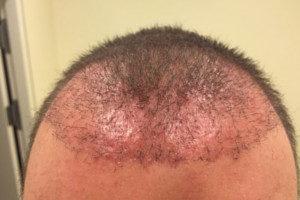 1 Monat nach der Haartransplantation