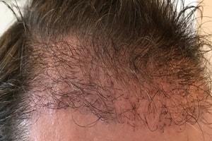 Haartransplantation Vorher Nachher 11 Wochen