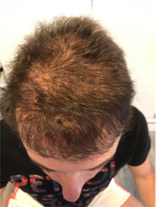 Haarpigmentierung Erfahrung Deutschland