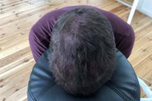 Haarpigmentierung Erfahrung in Berlin