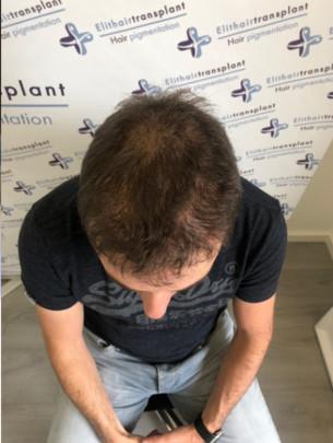 Haarpigmentierung Erfahrung in Düsseldorf