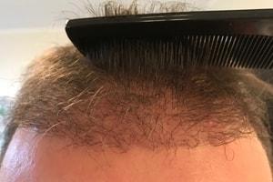 Haartransplantation Friseur