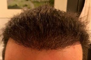Haartransplantation nach 6 Monaten