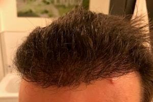Haartransplantation nach 5 Monaten