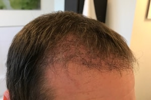 3 Monate nach der Haartransplantation