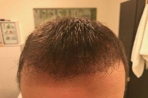 Haartransplantation haarwachstum