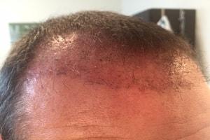 Haarverpflanzung Türkei Erfahrungen - 6 Wochen