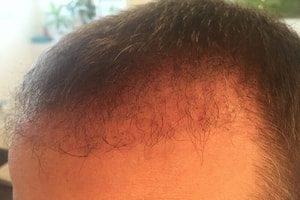 Haartransplantation Türkei Erfahrungen 9 Wochen