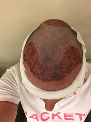 Haartransplantation Türkei Erfahrungen - Die Behandlung
