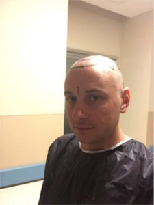 Haartransplantation Türkei Erfahrungen - Haarline