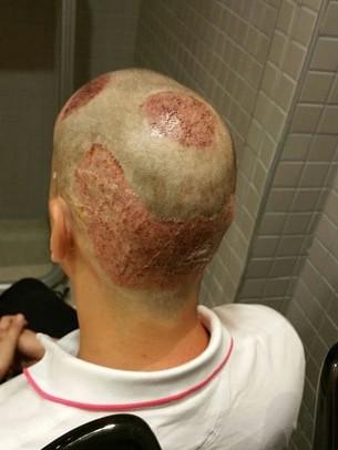 Nach der Haarverpflanzung