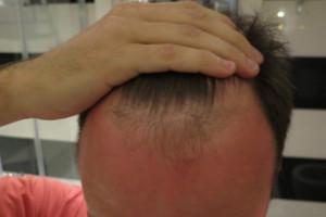Haartransplantation Türkei Erfahrungen - Vorher Nachher
