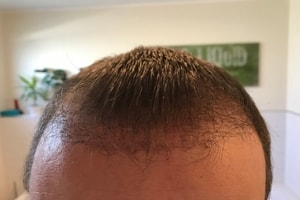 Haartransplantation Türkei Erfahrungen - Vorher Nachher 11 Wochen