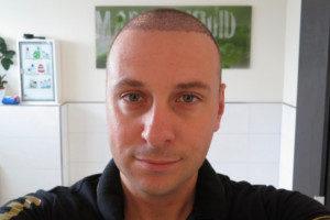 Haartransplantation Türkei - Vorher Nachher 10 Tage