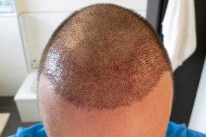 Haartransplantation Türkei Vorher Nachher 13 Tage
