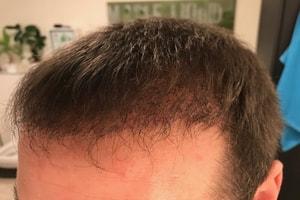 Haartransplantation Türkei Vorher Nachher 16 Wochen