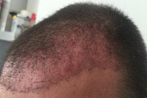 Haartransplantation Türkei Vorher Nachher 26 Tage