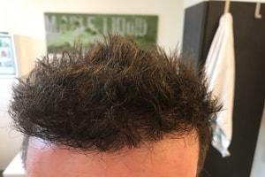 Haartransplantation Türkei Vorher Nachher Ergebnis