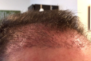 Haartransplantation Vorher Nachher 10 Wochen