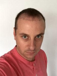 Haartransplantation nach 2 Monaten