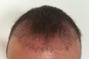 2 Monate nach der Haartransplantation