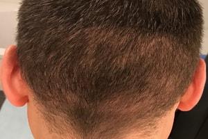 Haartransplantation nach 4 Monaten