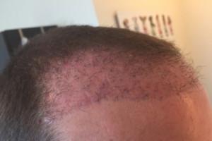 Haarverpflanzung Türkei Erfahrungen - 5 Wochen