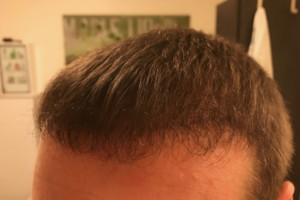 Vorher Nachher - 17 Wochen nach der Haartransplantation