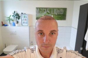 Vorher Nachher - 4 Tage nach der Haartransplantation
